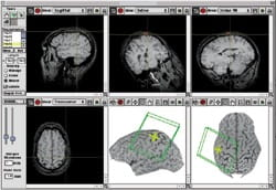 TMS techniques using Brainsight scanners use computer brain maps to target treatment precisely.