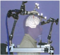 Brainsight scanner and TMS coil in place with simulated patient